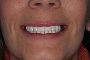 CEREC After Photo