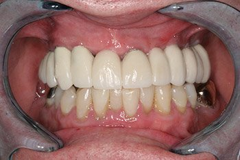 After Dental Implants in Peoria IL Photo