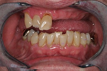 Before Dental Implants in Peoria IL Photo